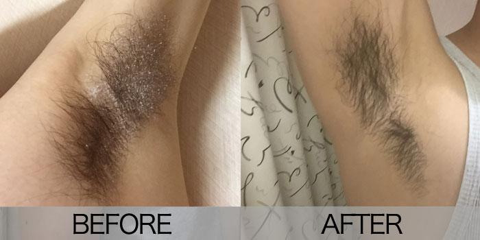 【脇臭対策】男の脇毛処理なら「カット」&やり方を写真付きで紹介