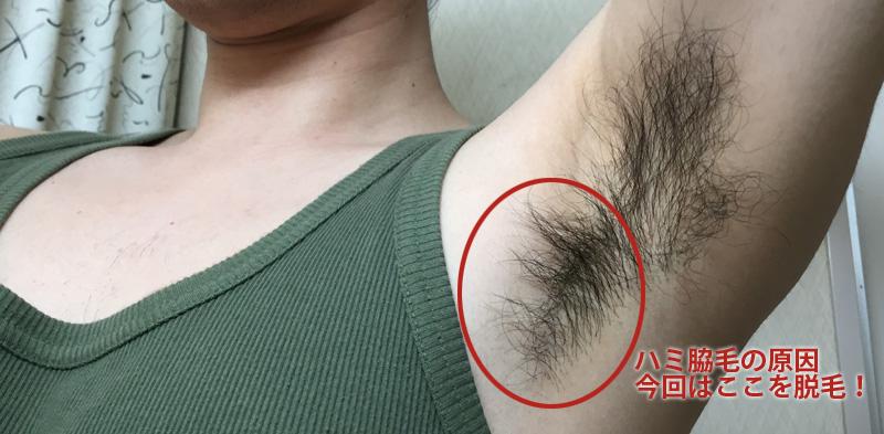 【男の脇毛脱毛】ハニーシュガーワックスを腋毛に使って口コミした